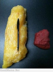 1kg of fat vs 1kg of muscle